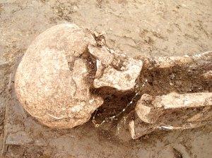 Il cranio della donna